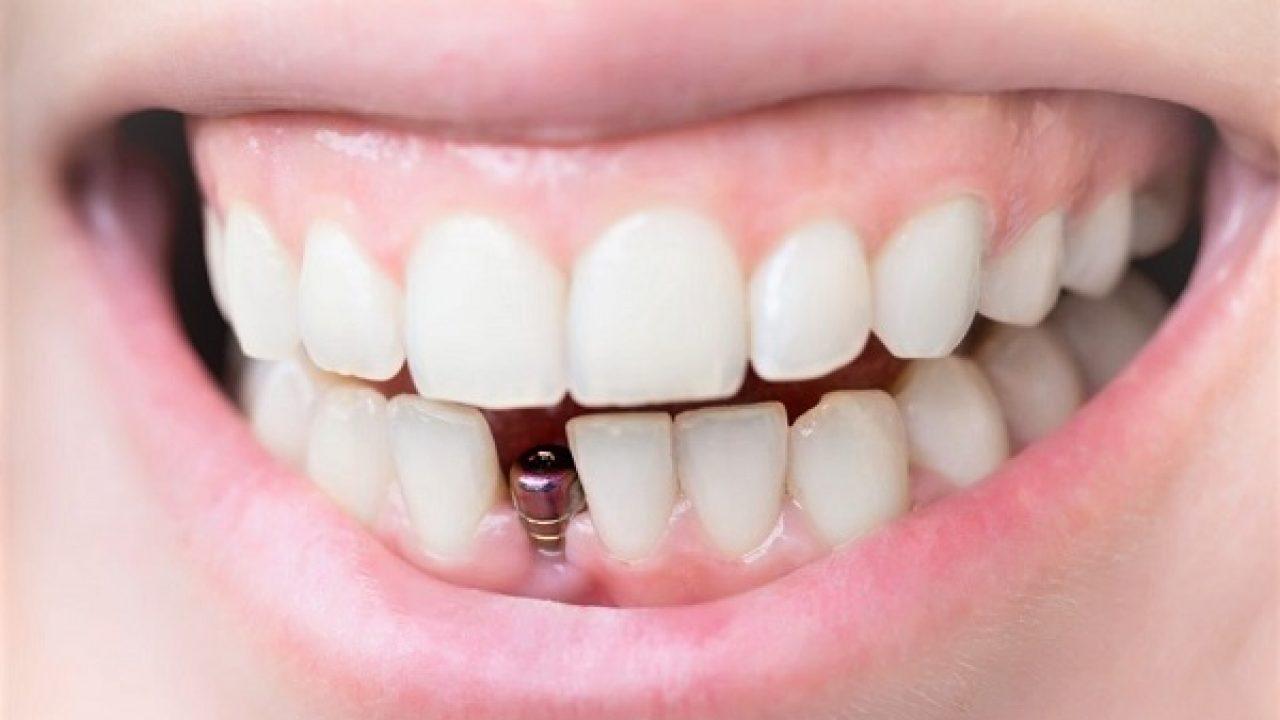 Implant dentaire : qu'est-ce qu'il faut savoir à propos des contres-indications ?