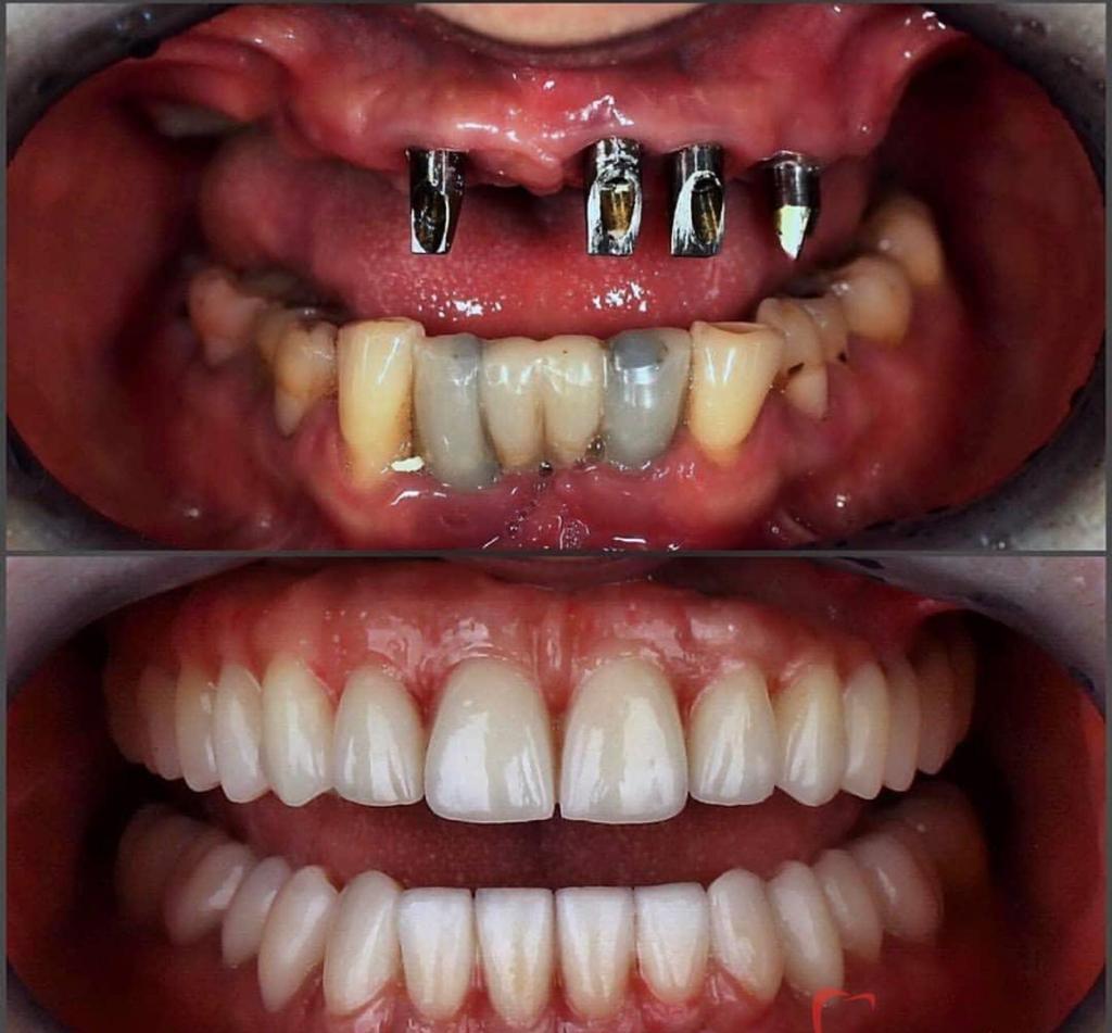Implant dentaire : quelle est cette technologie ?