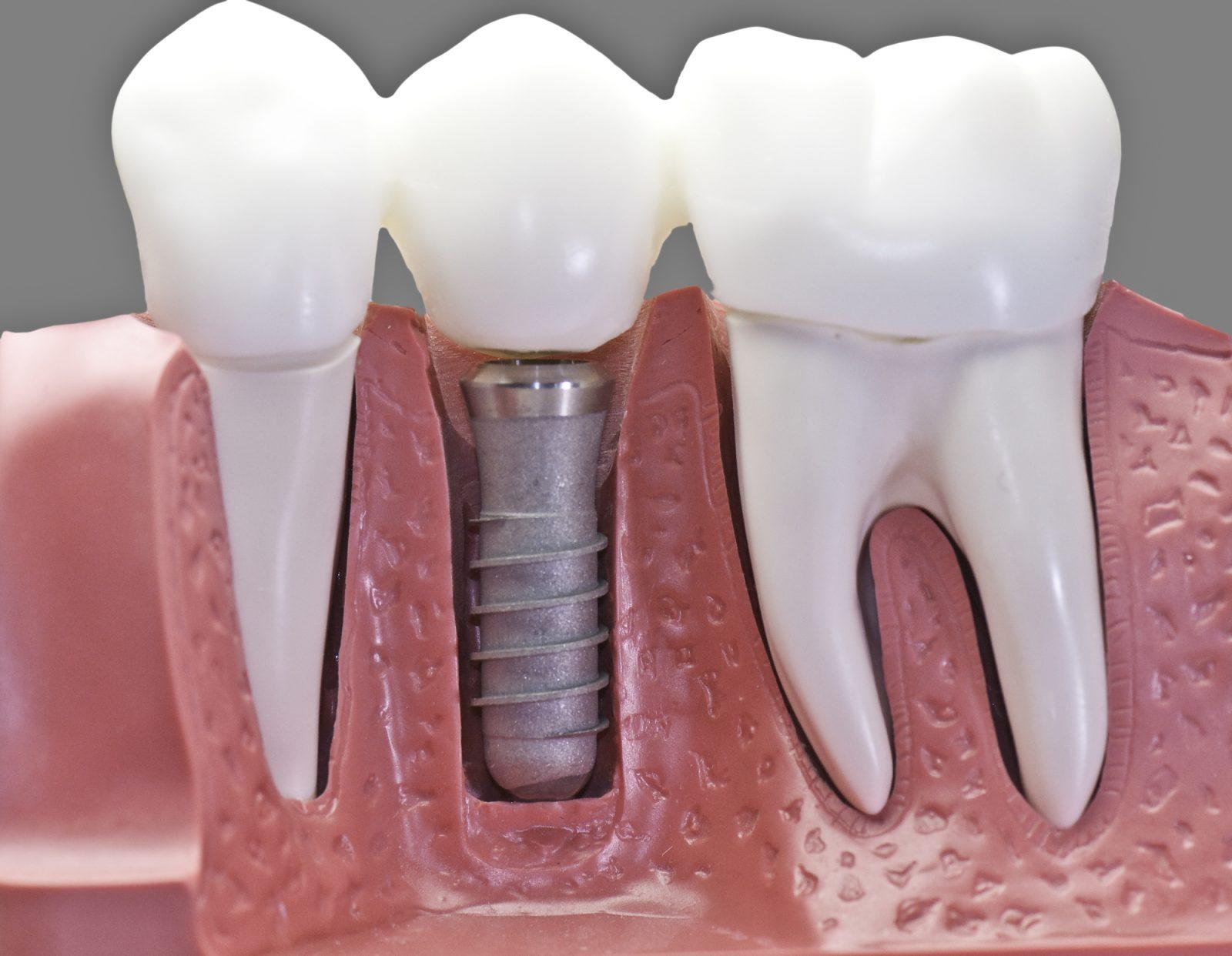 Implant dentaire : quels sont leurs avantages ?